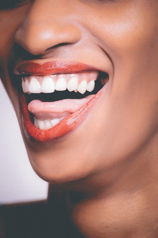 cosmetic dentistry marbella