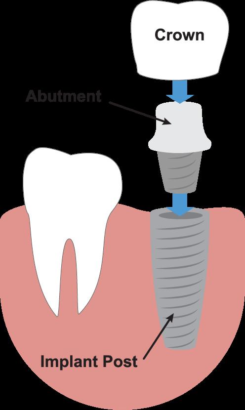 dental implant marbella