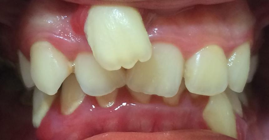 fast braces